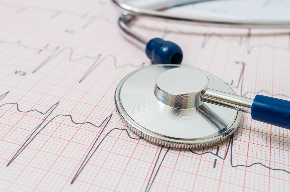 Cardiac assessments